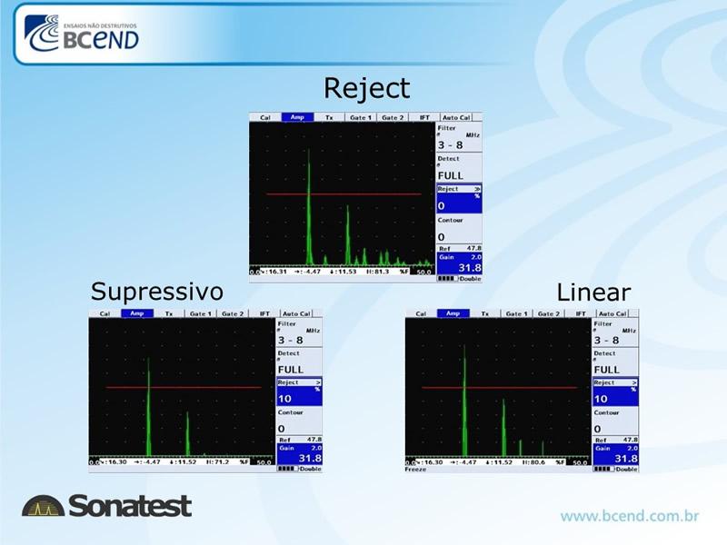 ultrassom-sonatest-novos-img-10