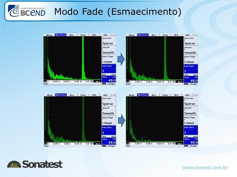 ultrassom-sonatest-novos-img-14
